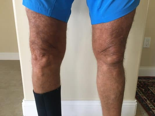 knee replacement bad knee