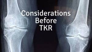 considerations before total knee replacement