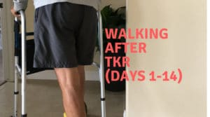 walking after knee replacement surgery