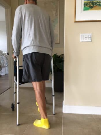 walking week after knee replacement