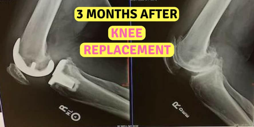 3 months after knee replacement surgery pain progress