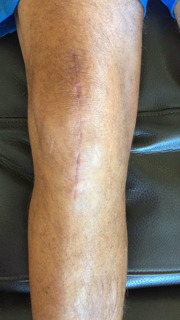 Knee replacement scar 2 months (8 weeks)