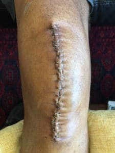 Knee Replacement Scar 7 days after surgery