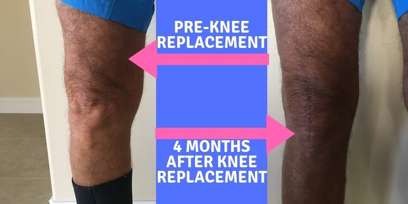 4 months after knee replacement surgery