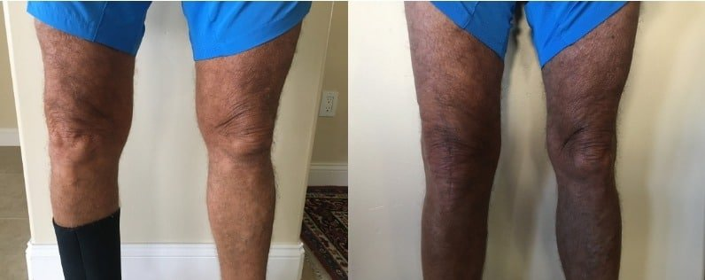 Before and after 4 months after total knee replacement surgery