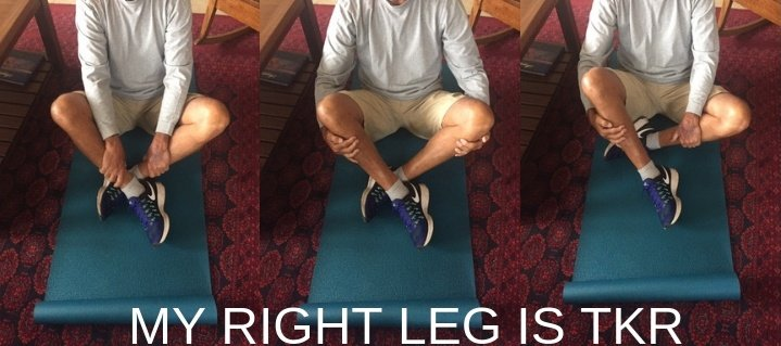 sit cross legged after knee replacement surgery
