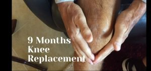 9 Months After Knee Replacement