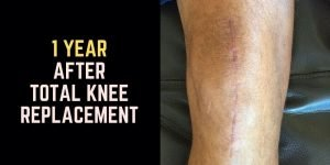 1 year after knee replacement surgery