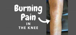Burning pain in knee